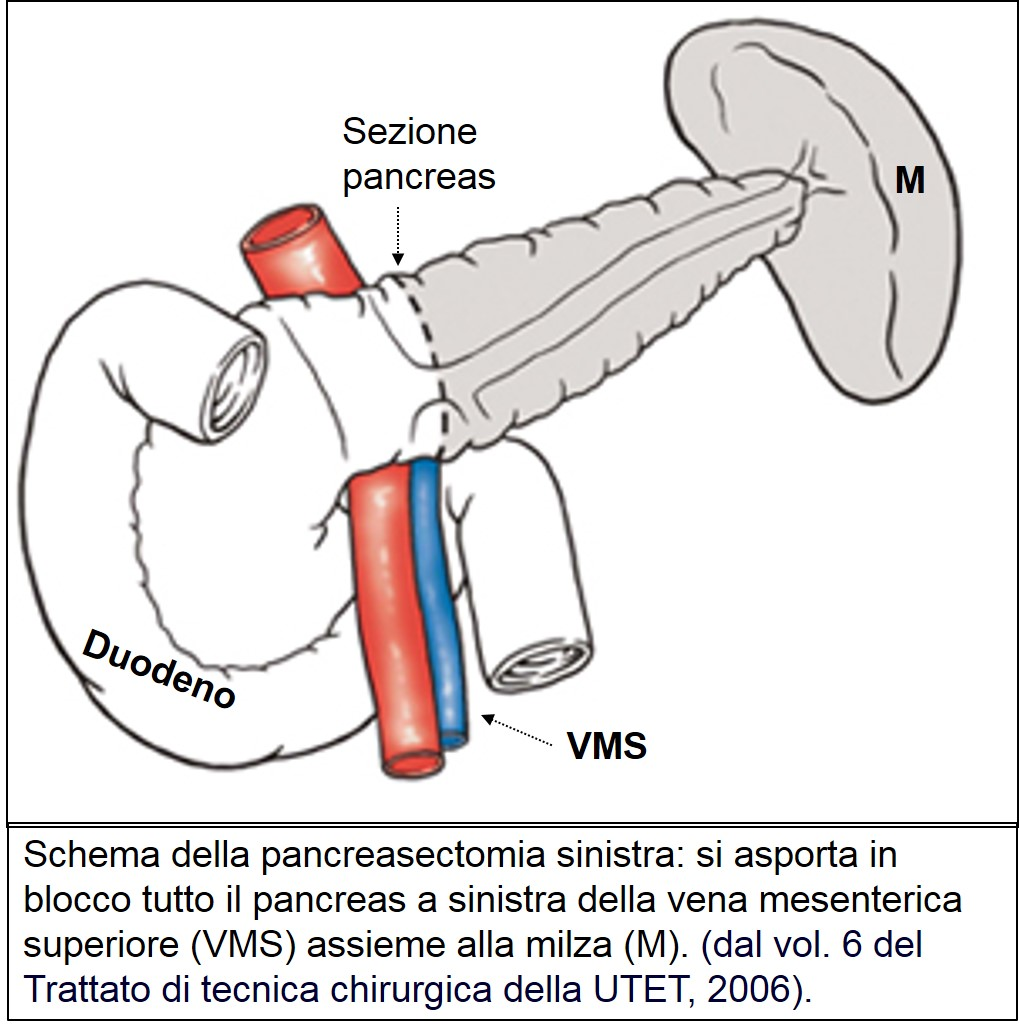 Pancreasectomia sinistra