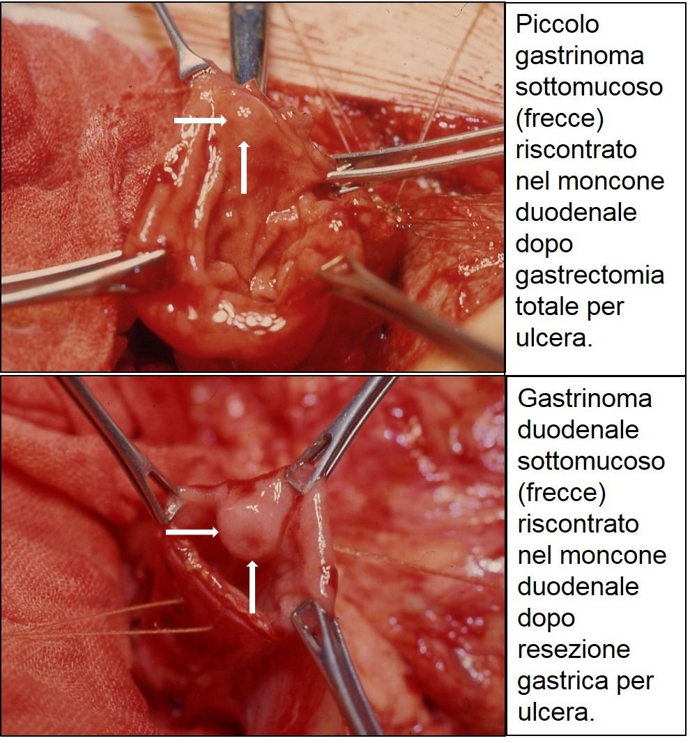 foto di gastrinomi duodenali