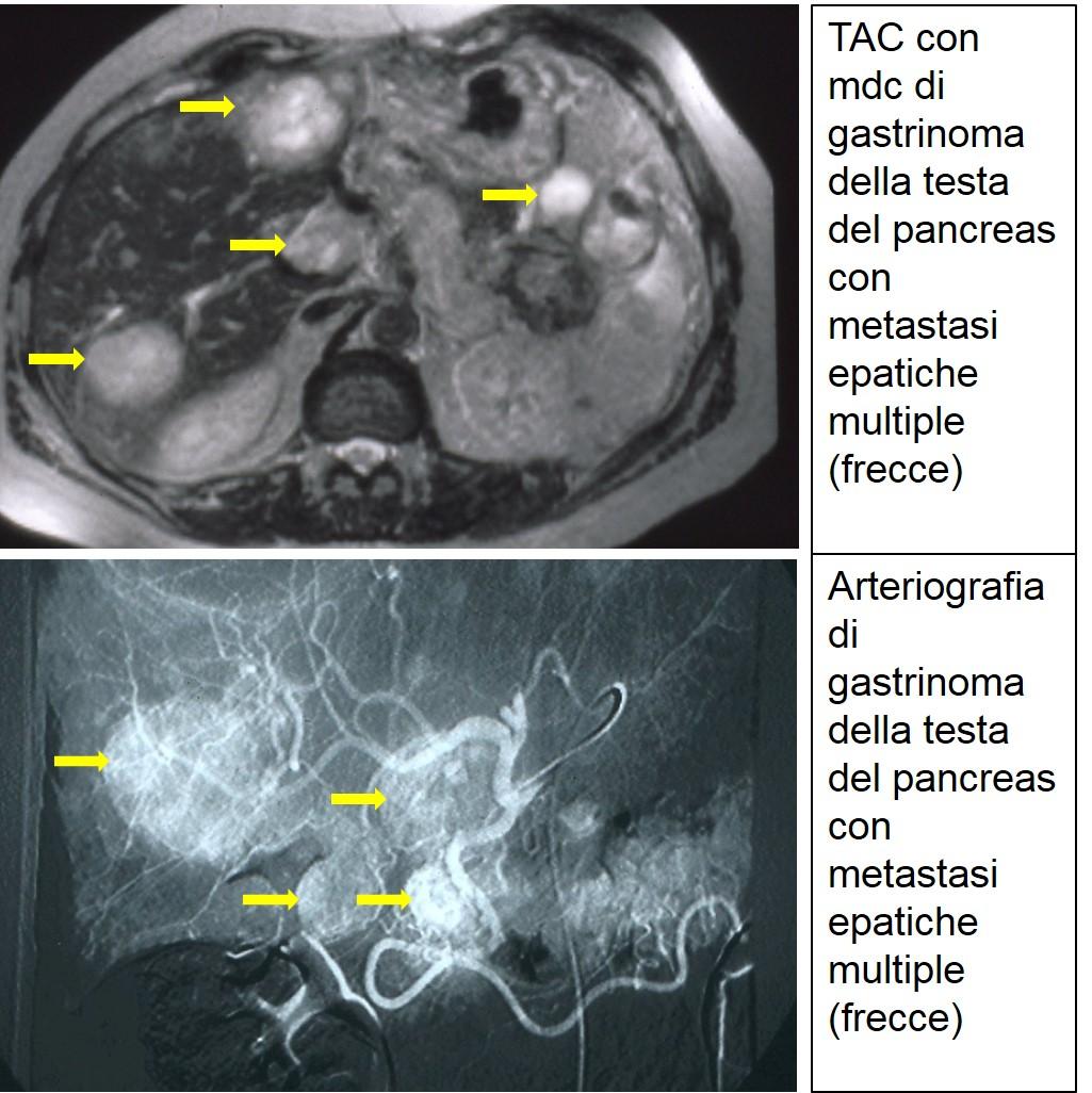 TAC e arteriografia di gastrinoma metastatico
