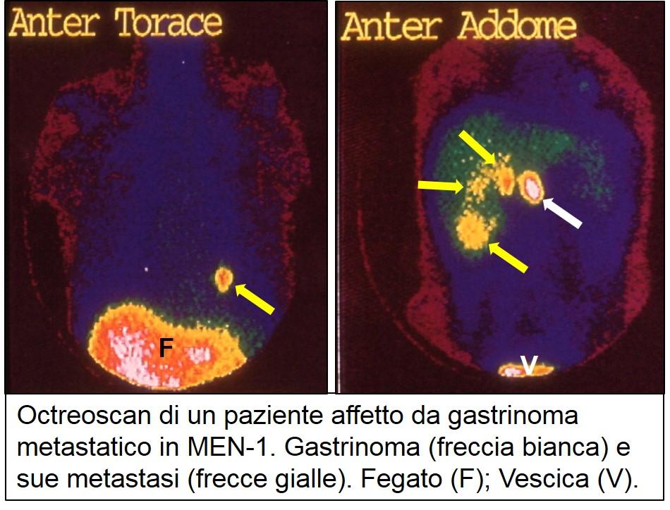 Octreoscan di gastrinoma metastatico
