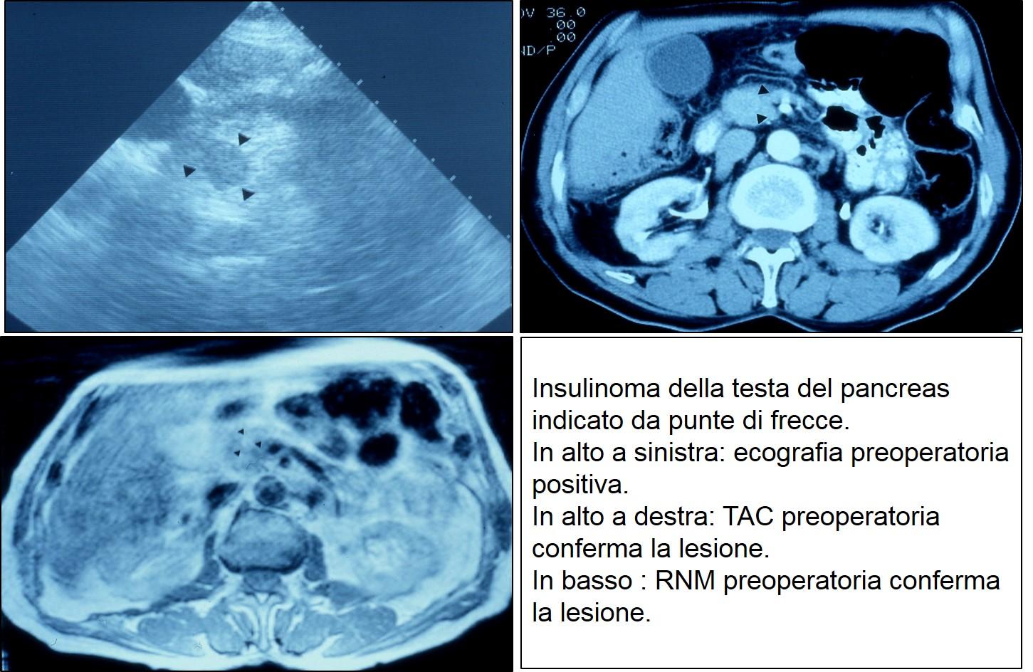 Eco TAC RNM di insulinoma cefalico