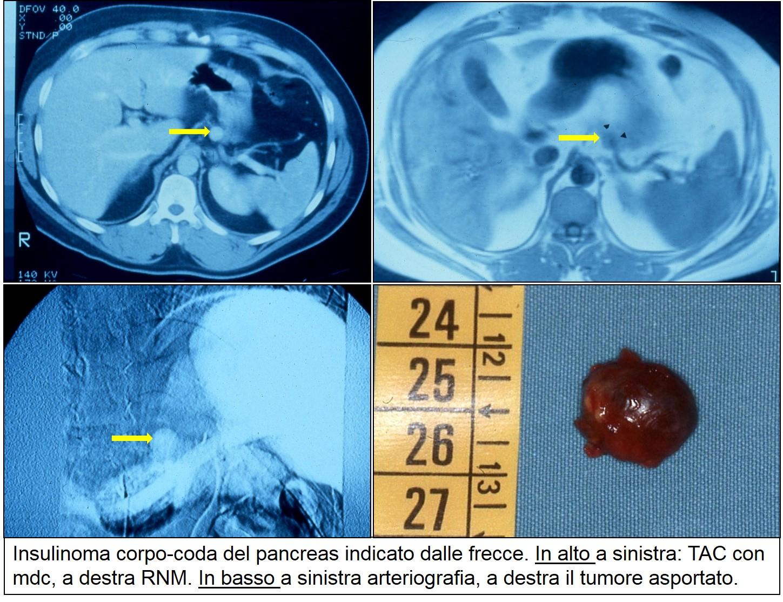 TAC RNM e arteriografia di insulinoma