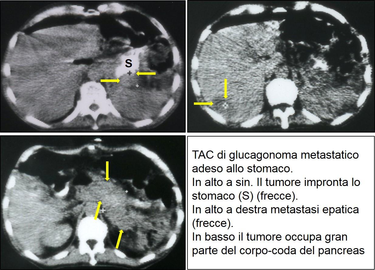 TAC di glucagonoma metastatico