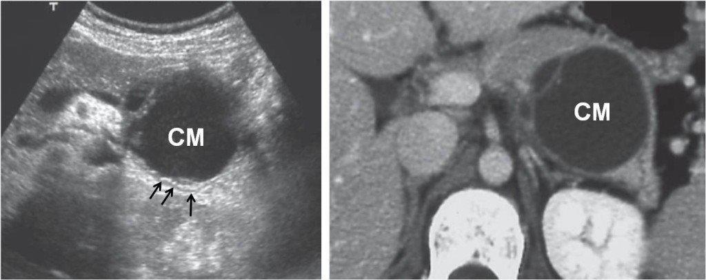 Il cistoadenoma pancreatico