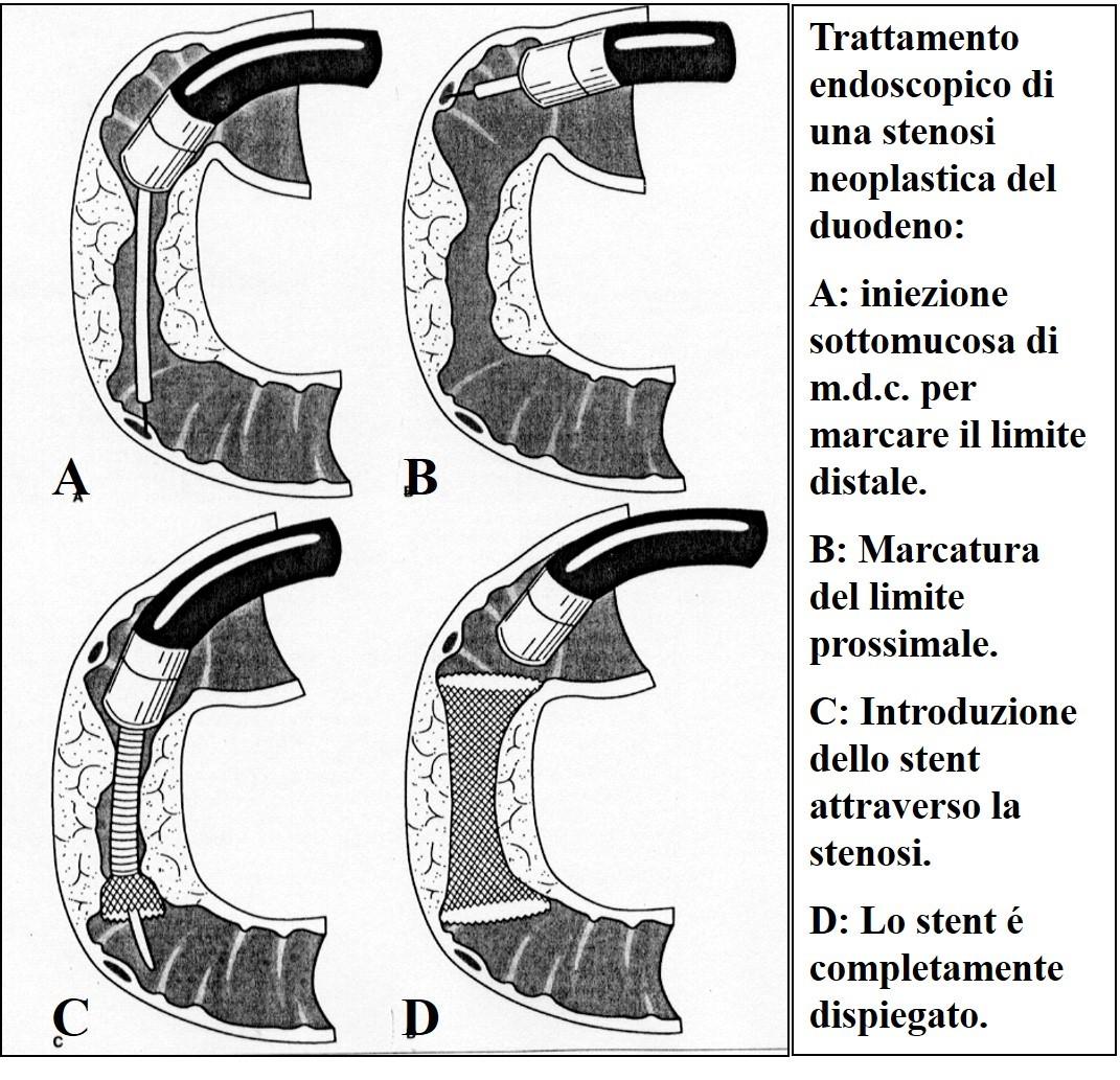 Posizionamento di endoprotesi per stenosi duodenale
