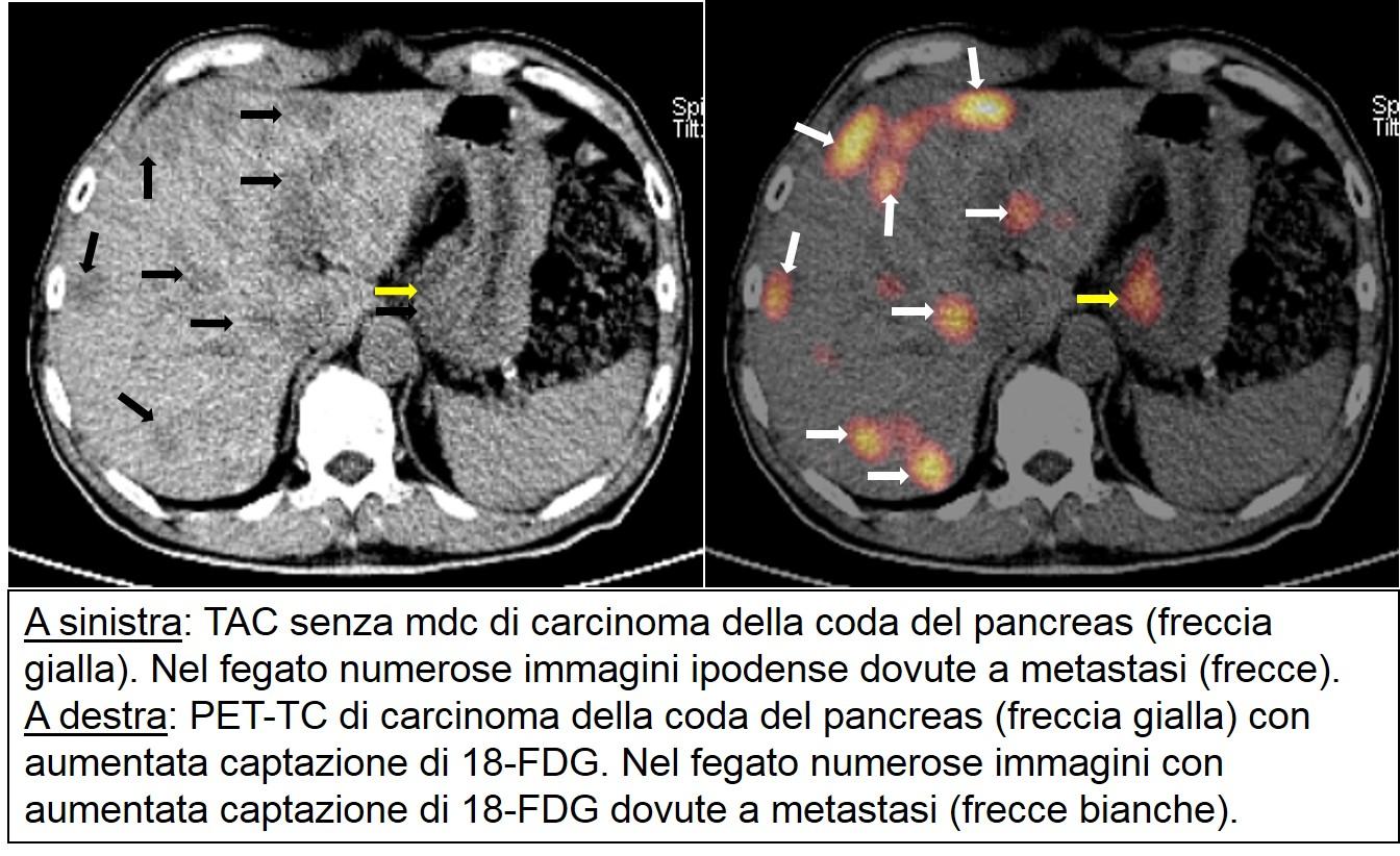 PET-TC di carcinoma cefalopancreatico