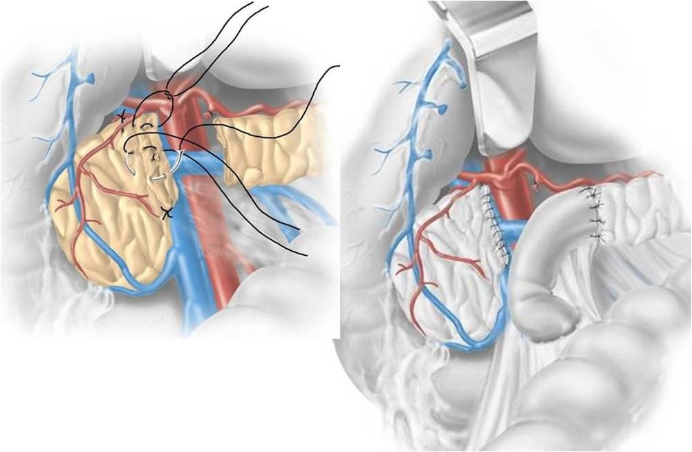 Pancreasectomia intermedia - schema