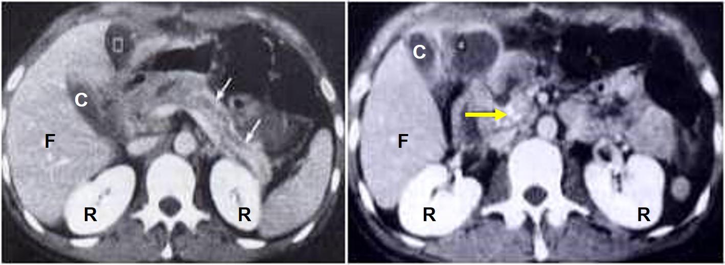 TAC con mdc di pancr cronica calcifica